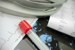 Выразьте анализ в предпосылке ICU.Medical. стоковые фото