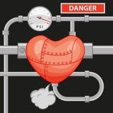 Высокое кровяное давление Стоковые Фотографии RF