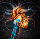 Высоко- обработка холестерола иллюстрация штока