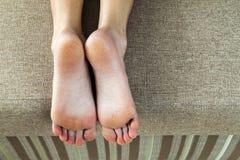Высушите треснутую кожу ног женщины в кровати Обработка ноги Стоковое Изображение RF