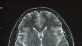 вычисленный tomography x луча сток-видео