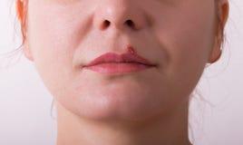 Герпес губы девушки больной Стоковая Фотография RF