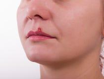 Герпес губы девушки больной Стоковые Фотографии RF