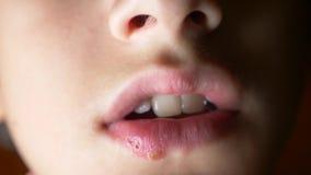 Герпес на губах мальчика герпес обработка губы 4k, стрельба замедления, космос экземпляра видеоматериал