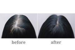 Главная девушка с черными серыми волосами Расцветка волос Верхняя часть головы Before and after стоковое изображение