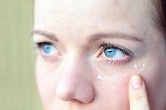 глаза помогают утомлено вам стоковое фото rf