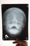 головка излучает x Стоковые Фотографии RF