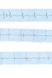 голубое сердце cardiogram Стоковое Изображение RF