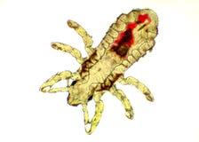 Головная вошь - capitis Pediculus, изображение микроскопа Стоковое Фото