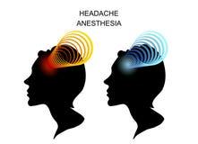 Головные боли в женщинах мигрень анестезиолога Стоковое фото RF