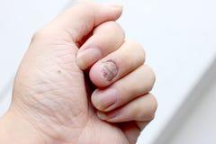 Грибная инфекция на ногтях руке, пальце с onychomycosis - мягкий фокус стоковое изображение