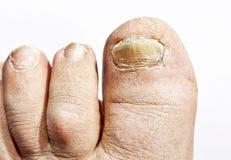 Грибная инфекция на ногтях стоковое фото rf