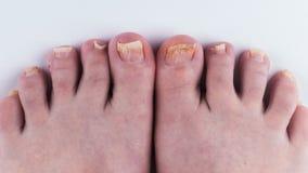 Грибок ногтя на ногах Конец-вверх на белой предпосылке стоковые изображения