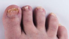 Грибок ногтя на ногах Конец-вверх на белой предпосылке стоковые фото