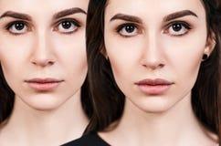 Губы молодой женщины перед и после увеличением Стоковые Фотографии RF