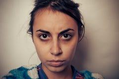 Глаза больных женщин Стоковые Изображения RF