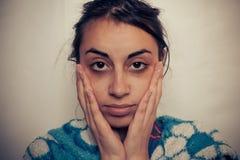 Глаза больных женщин Стоковая Фотография RF