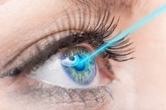 Глаз женщины конца-вверх с медициной лазера Стоковое Изображение RF