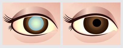 Глаз катаракты стоковые изображения