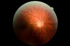 Глаз микроскопа Стоковая Фотография