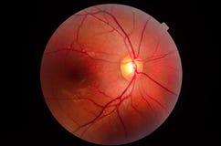 Глаз микроскопа стоковое изображение rf