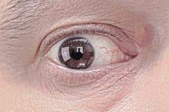 Глаз Стоковая Фотография
