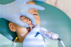 Дантист обрабатывает зубы мальчика Зубы рассматривая мальчика дантиста в клинике Небольшой пациент в зубоврачебных улыбках стула  стоковые изображения rf
