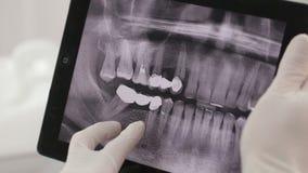 Дантист показывает терпеливый рентгеновский снимок на таблетке акции видеоматериалы