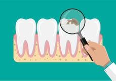 Дантист с лупой рассматривает зубы Стоковые Изображения RF