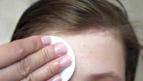 Девочка-подростки прикладывают moisturizing сливк стороны для угорь Девушка трет ее лоб с салфеткой Косметические процедуры для стоковое изображение rf