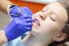 Девочка-подросток на приеме ` s дантиста Расчалки на зубах Стоковое Изображение RF