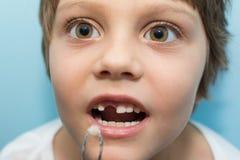 Девушка вытягивает зуб стоковые изображения