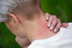 Девушка при сдержанные светлые волосы, сидя с назад повернутое его и царапать, красный цвет, опухнутая кожа шеи от комариных укус Стоковые Фотографии RF