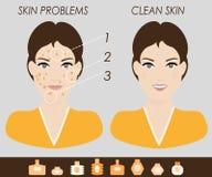 Девушка с проблемами кожи и чистой иллюстрацией вектора кожи Стоковое Изображение RF