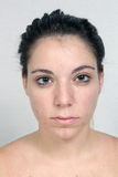 Девушка с угорь (1) Стоковые Фотографии RF
