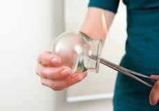 деталь шарика иглоукалывания придавая форму чашки стоковые фотографии rf