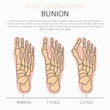 Деформация ноги как медицинское desease infographic Причины bunio иллюстрация вектора