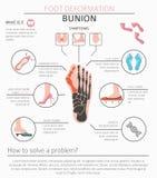 Деформация ноги как медицинское desease infographic Причины bunio бесплатная иллюстрация