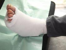 диабетический ушиб ноги Стоковое фото RF