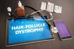 Диагноз медицинский co дистрофии луковицы волоса (накожного заболевания) Стоковое фото RF