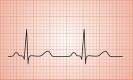 Диаграмма биения сердца нормальная ECG стоковые изображения