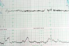 диаграмма медицинская Стоковое Изображение RF