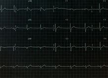 Диаграмма электрокардиограммы стоковое фото