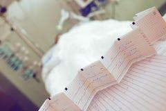 Диаграмма ECG на предпосылке терпеливой кровати Стоковое Изображение