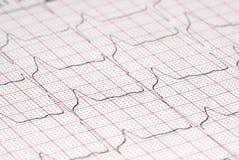 Диаграмма ECG Стоковая Фотография
