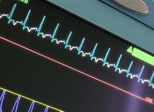 Дисплей с ECG-кривой Стоковая Фотография RF