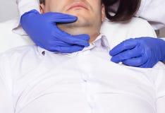 Доктор выполняет подъем двойного подбородка на молодой человека используя современный метод mesothread, процедуру стоковые фото