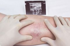Доктор в перчатках рассматривает вены и ноги пациента для присутсвия затромбирования и varicose вен оконечностей стоковые изображения