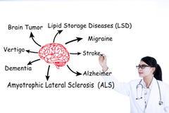 Доктор пишет болезни мозга Стоковое Изображение RF