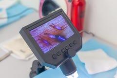 Доктор под микроскопом рассчитывает заново луковицы волоса Обработка плешивости Трансплантат волос Хирургический метод стоковое изображение